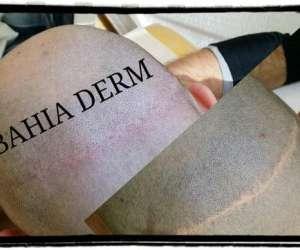 Bahia derm - specialiste dermographe