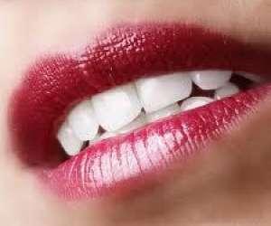 Chriss-lyssmile bar à sourire  - blanchiment dentaire